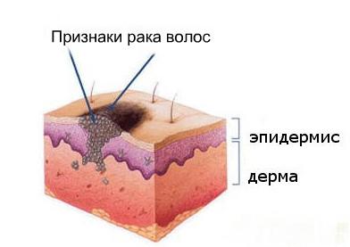 Рак волос