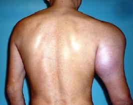 Рак кости плеча