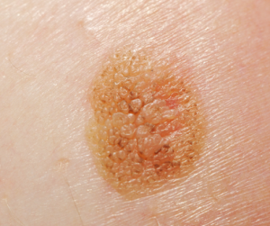 Меланома кожи начальная стадия