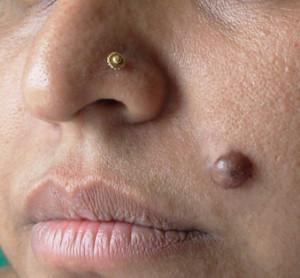 Невус на лице как признак рака