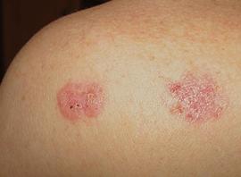 Плоскоклеточный рак кожи начальная стадия