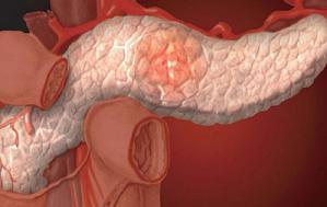 Рак поджелудочной 4 стадия