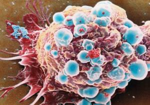 Раковая опухоль: как выглядит? Фото и описание
