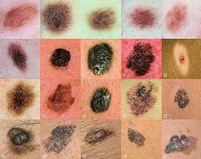 Меланома - фото, начальная стадия.