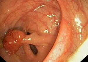 Рак кишечника на ранней стадии