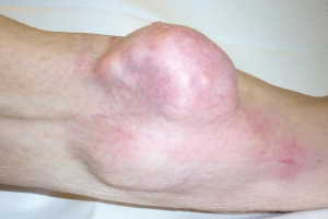 Рак костной ткани