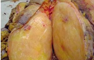 Рак жировой ткани