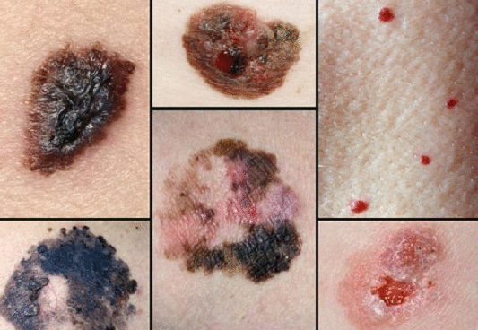 меланома фото начальная 1 2 стадия