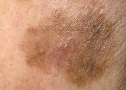 stadii melanomy - foto
