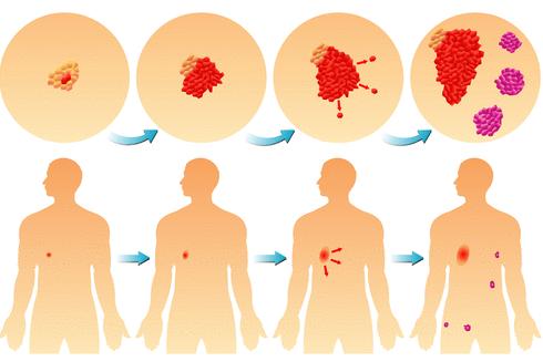 Как определить стадию рака?