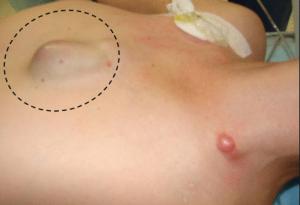 Рак грудины у женщин