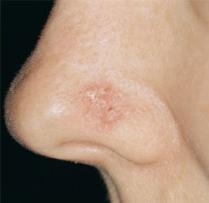 Рак носа: фото, признаки, лечение