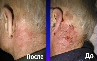 Фотодинамическая терапия - инновация в лечении рака