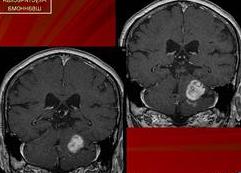 Доброкачественная опухоль мозга