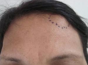 Остеома - фото. Как выглядит остеома?