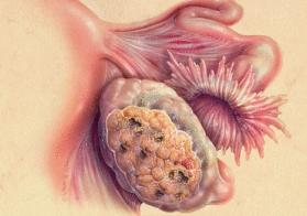 Раковая опухоль - фото.