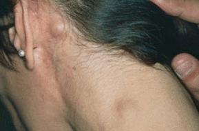Раковая опухоль: Фото злокачественных опухолей