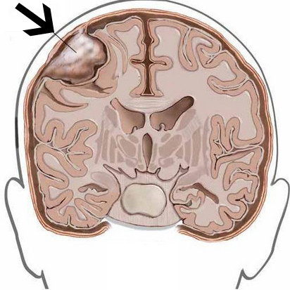 Операция по удалению менингиомы