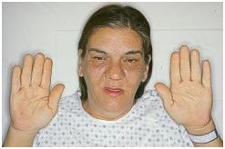 Опухоль гипофиза симптомы у женщин