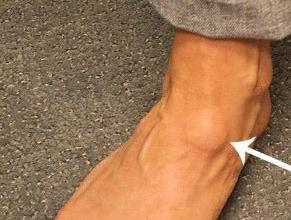 атерома на ноге - фото