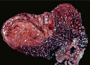 Рак желудка: симптомы, сколько живут?