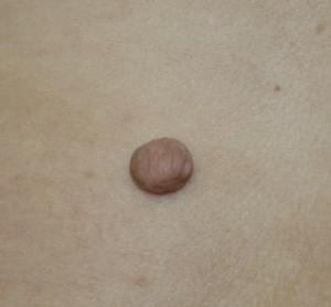фиброма кожи - фото
