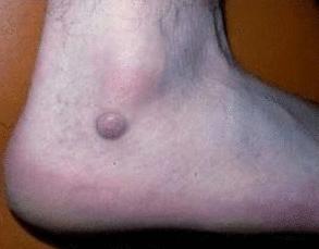фиброма на ноге - фото