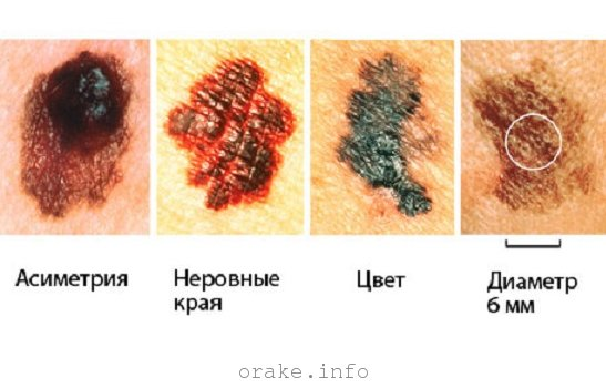 Меланома: симптомы