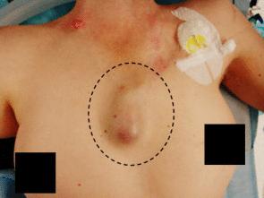 рак грудины у женщин - фото