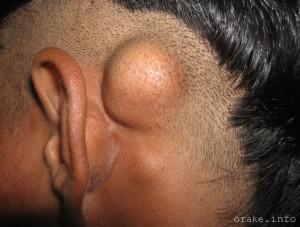 опухоль черепа