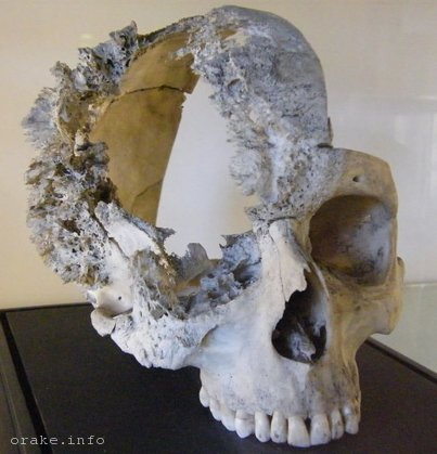 рак черепа