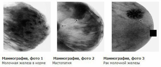 karcinoma molochnoj zhelezy