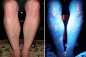 metastaza nog