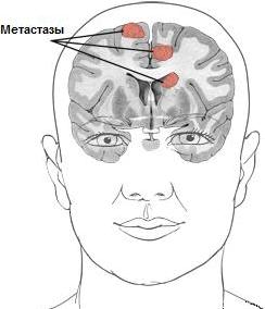 metastazy v golove