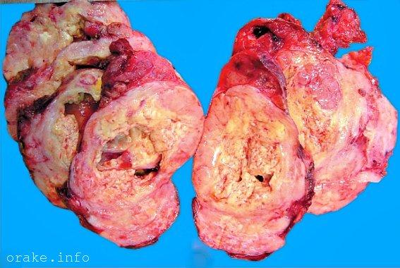 follikulyarnyj rak shhitovidnoj zhelezy