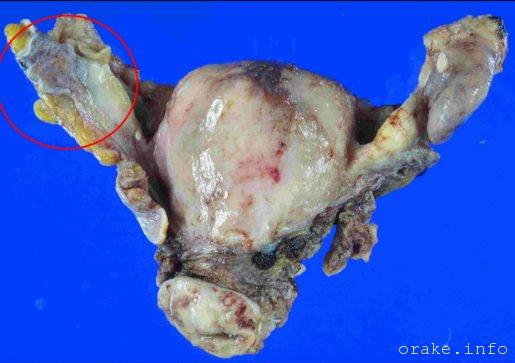 kak vyglyadit rak matochnoj truby
