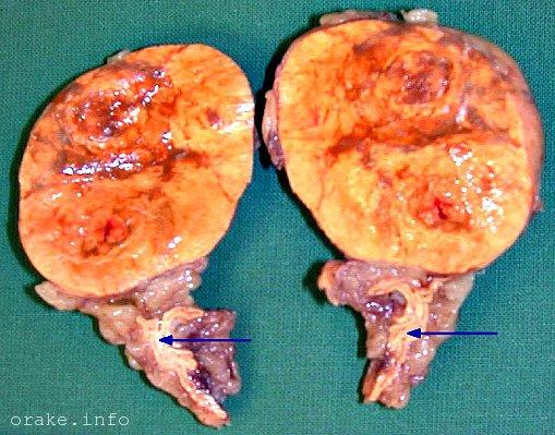 lechenie adenomy nadpochechnika