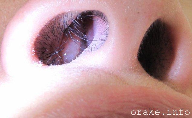 polipoz nosa perexodit v rak