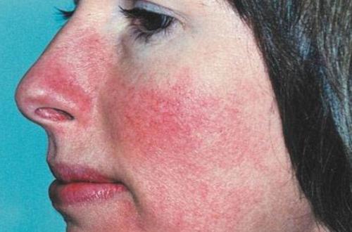 karcinoidnyj-sindrom