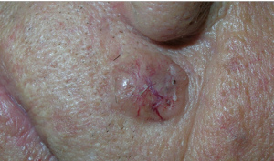Рак кожи - фотоподборка