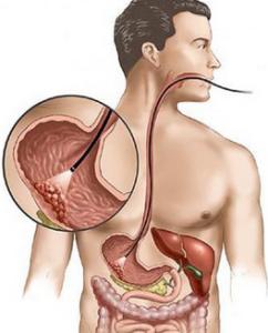 Онкология желудка - диагностика