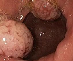Онкология желудка - лечение