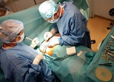 Операция опухоль груди