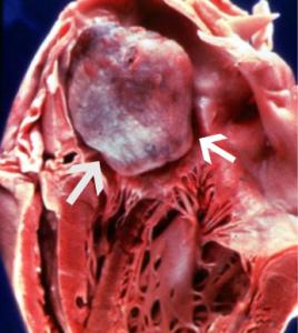 Опухоль сердца лечится