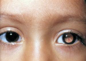 Рак глаз у детей