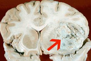 Рак мозга у детей можно вылечить