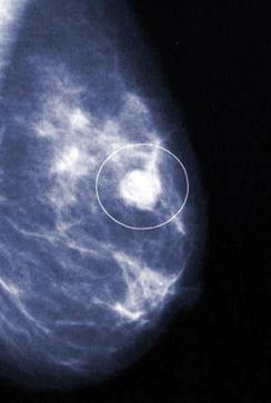 Фиброаденома молочной железы после операции