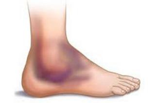rak nogi - simptomy