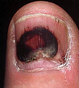 Рак ногтя