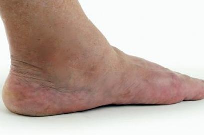 Рак отек ног